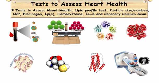 High cholesterol diagnosis tests