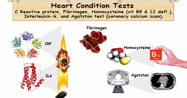 Heart condition tests