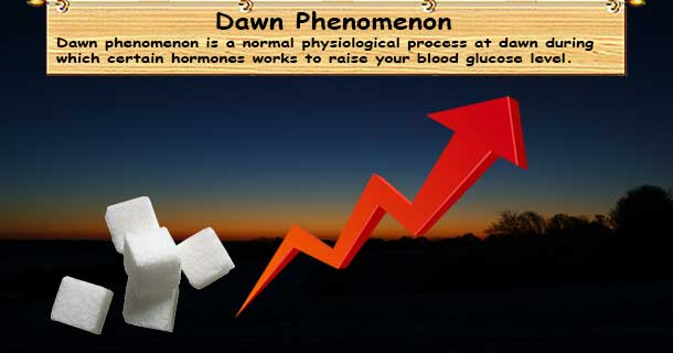 Diabetes Dawn Phenomenon