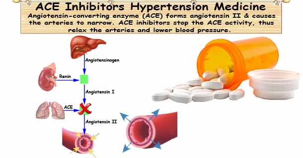 hypertension and ace inhibitor A class of medicine usually used to treat high blood pressure angiotensin-converting enzyme (ace) inhibitors also appear to protect people with diabetes from diabetic nephropathy (kidney.