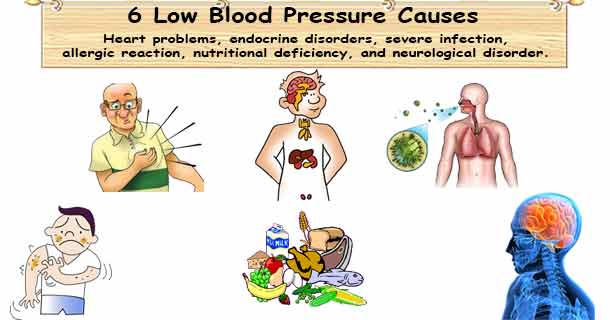 Low blood pressure causes