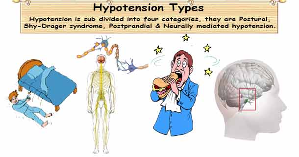 low blood pressure types | different categories of hypotension, Skeleton