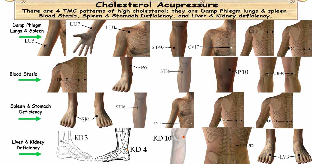 Acupressure Treatment for High Cholesterol