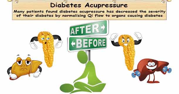 Diabetes Acupressure