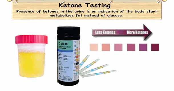 Ketone Testing Strips