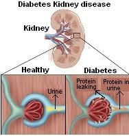 Diabetes Kidney Disease