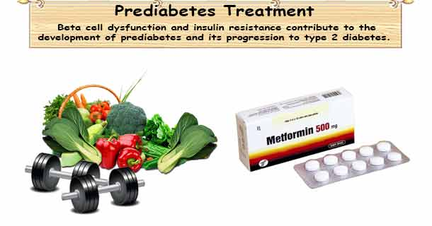 Prediabetes Treatment