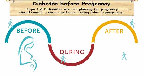 Before Pregnancy Care with Diabetes
