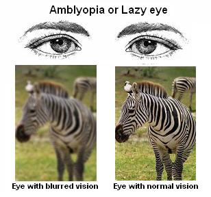 Amblyopia Lazy Eye