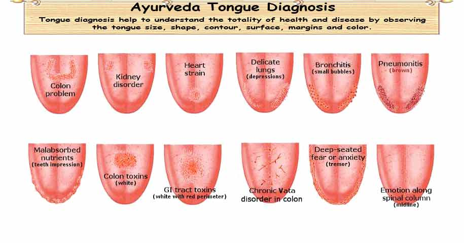 Ayurveda Tongue Diagnosis